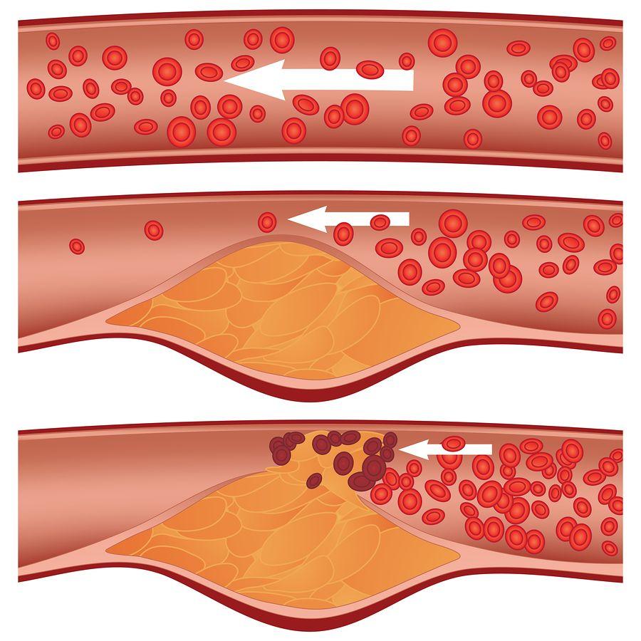 placa de colesterol arteria