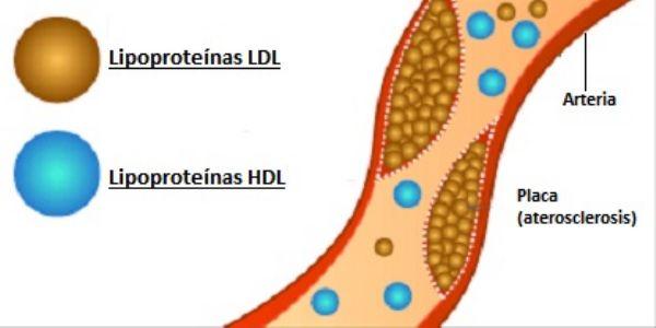 tipos-colesterol