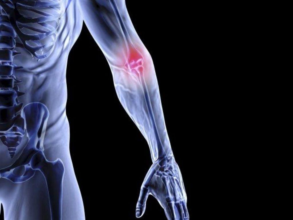 osteoporosis(1)