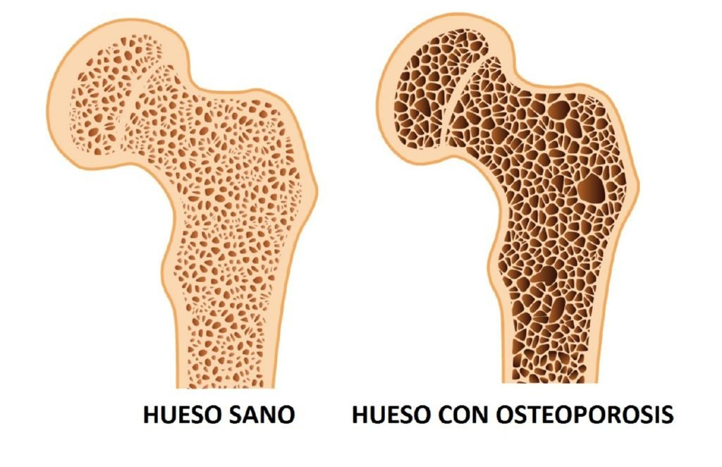 hueso-osteoporosis
