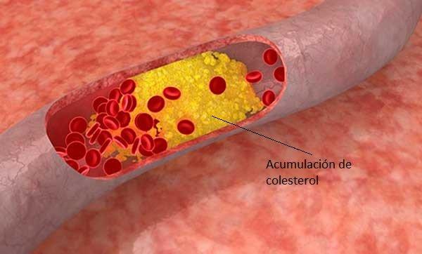 arteria-con-colesterol