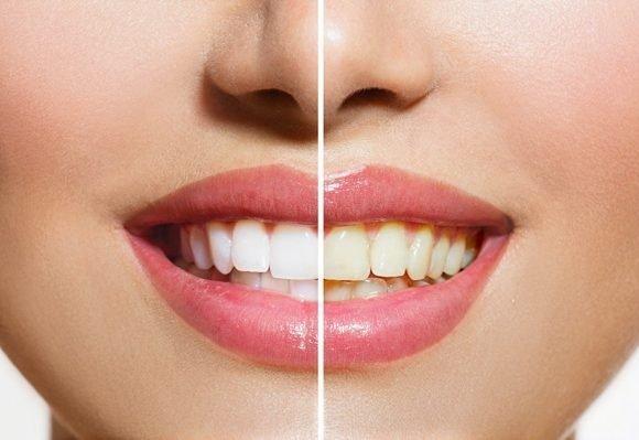 , 7 formas sencillas de blanquear tus dientes naturalmente
