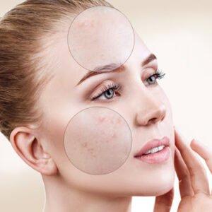 ¿Cómo quitar manchas en la cara? Guía paso a paso